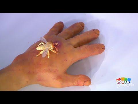 Вопрос: Как обработать укус пчелы или осы?