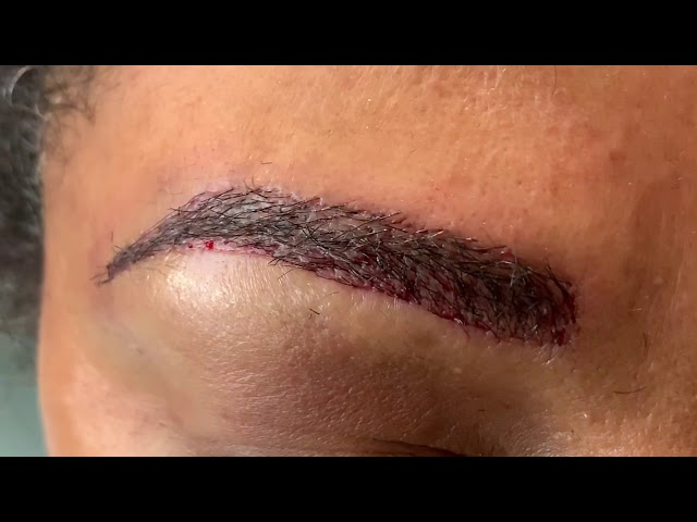 Dallas African-American Eyebrow Hair Transplant Immediately After Close-Up