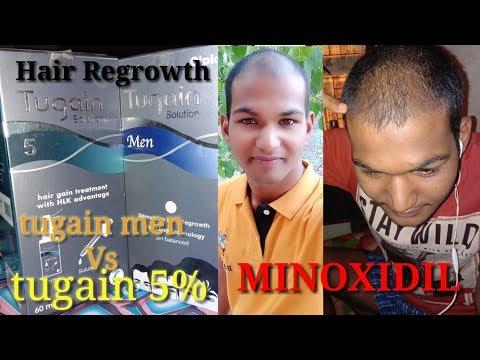 minoxidil-result-after-use-6-month।sonu-kumar-mishra।skm