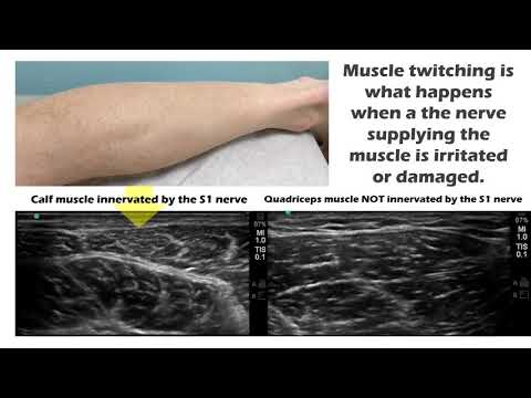 Calf Muscle Jumping? - YouTube