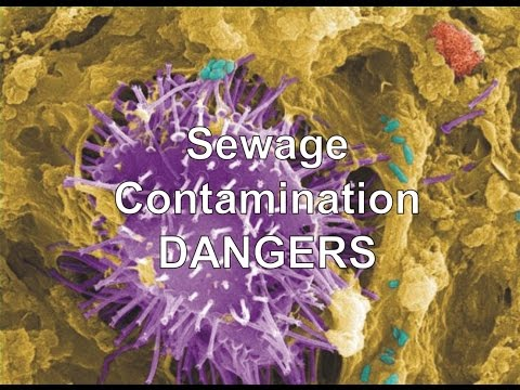 Sewage Contamination Dangers By Jimmy Garza Emergency Water Removal