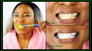 HOW TO WHITEN TEETH IN 2 MINUTES | HOW TO GET REALLY WHITE TEETH | Khichi Beauty