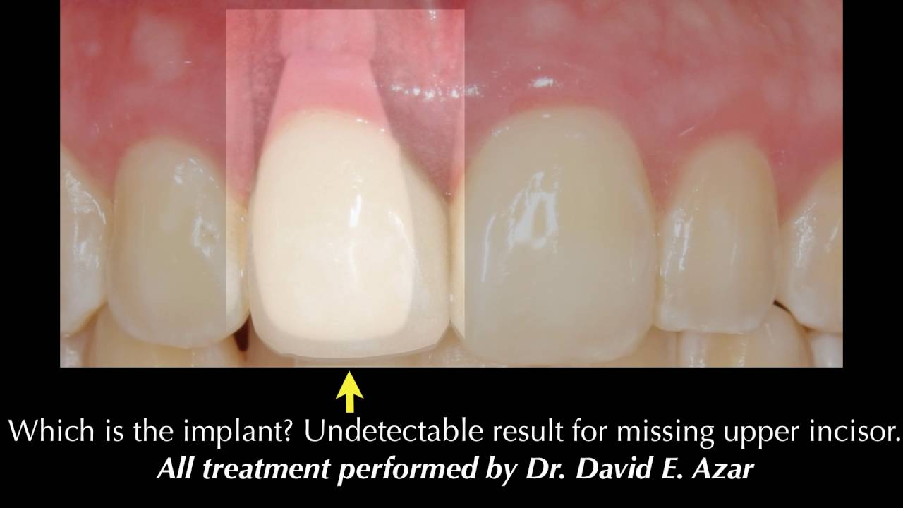 The Good Bad Ugly Of Dental Implants