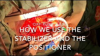 Off-pump coronary bypass grafting: how we use the Octopus Stabilizer and the Starfish  Positioner