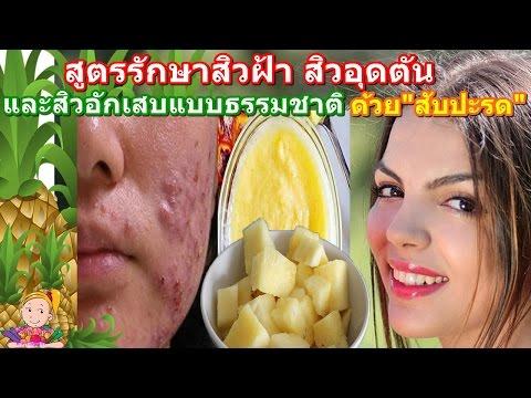 สูตรรักษาสิวฝ้า(acne ,blemish ,Freckles)สิวอุดตันและสิวอักเสบแบบธรรมชาติด้วย สับปะรด(pineapple)