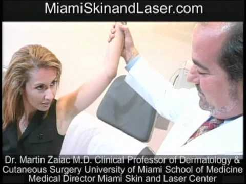 Botox for hyperhidrosis sweating sweaty armpits explained  Board Certified Dermatologist Miami