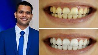 Как Быстро Отбелить Зубы В Домашних Условиях Доктор Вивек