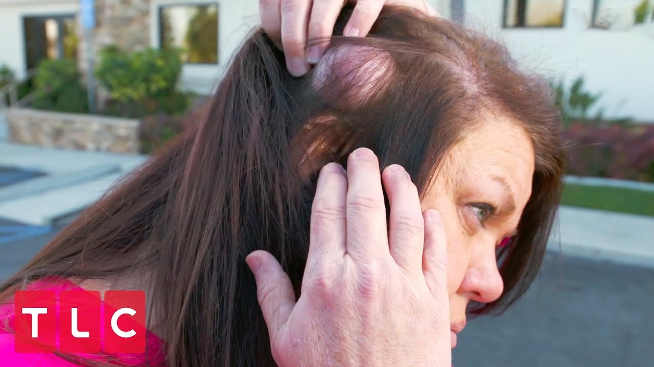 Bumps All Over Her Head Dr Pimple Popper