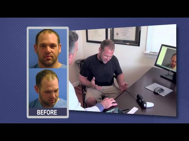 FUE Hair Transplant Testimonial   Dr. Boden   Hartford, CT