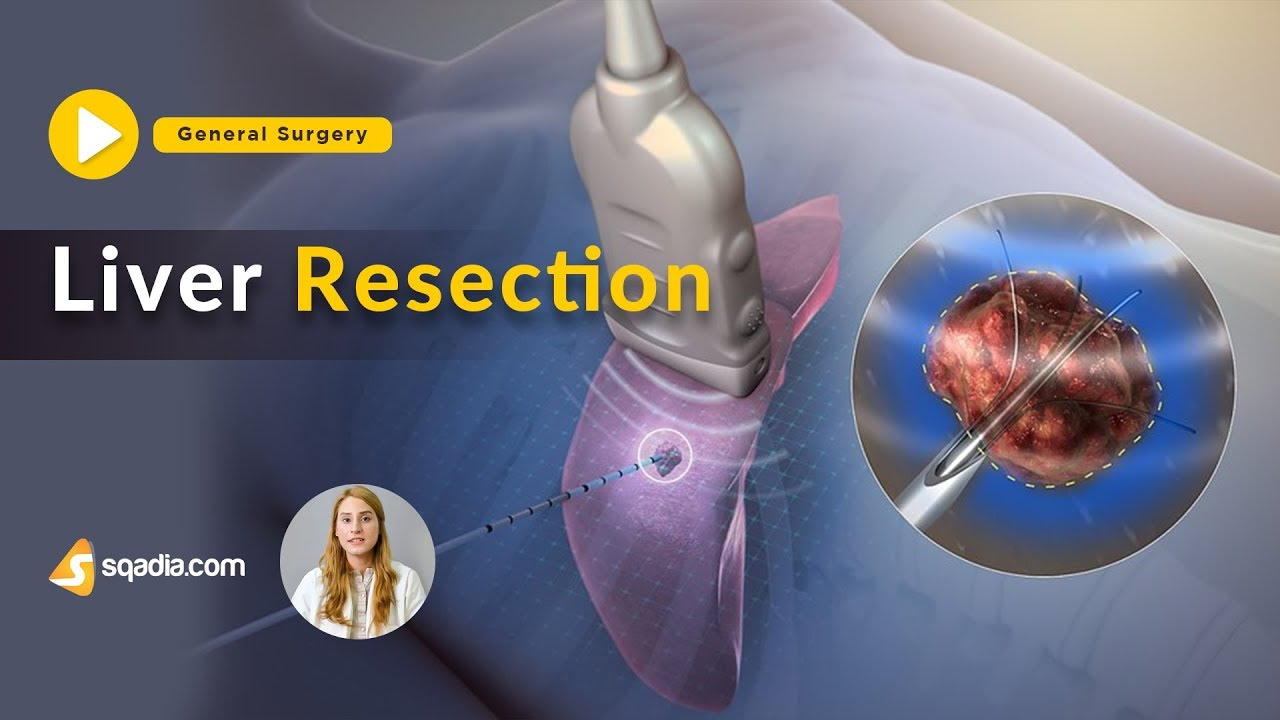 Liver Resection | General Surgery Lectures | Medical Student | V-Learning | sqadia.com #Generalsurgery