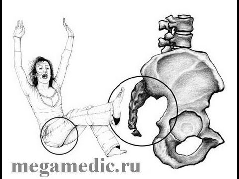 Переломы крестца и их лечение