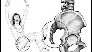 Травмы копчика  Последствия и лечение(В этом видео рассказывается об ушибах и переломах копчика. Вы узнаете какие могут быть последствия этих..., 2014-10-07T13:36:19.000Z)