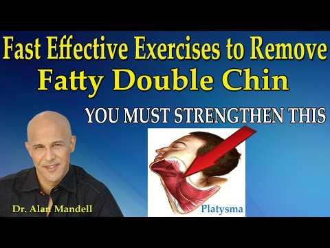 Fast Effective Exercises to Remove Fatty Double Chin - Dr Mandell