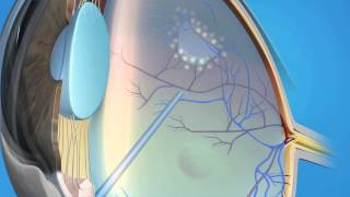 Detached Vitrectomy by Retina Consultants of Southern California