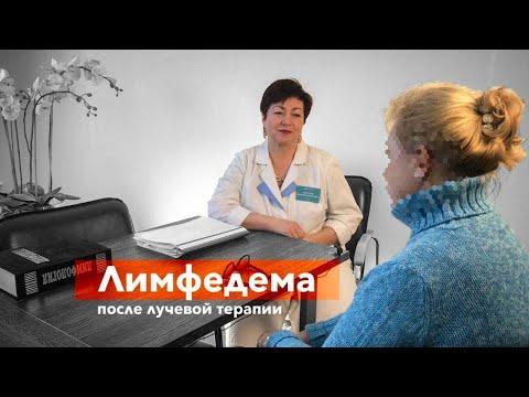 Отек бедра после операции и лучевой терапии | Отзыв Ирины