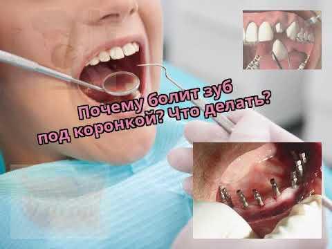 Болят зубы после установки коронок