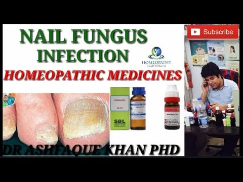 Nail fungus! infection and it's homeopathic medicines