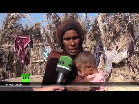 Эксклюзив: RT побывал в охваченной голодом провинции Йемена