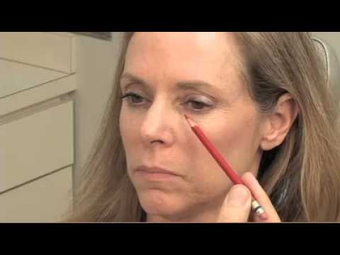 Where do you use soft tissue fillers like Restylane? By- Dr. Kridel