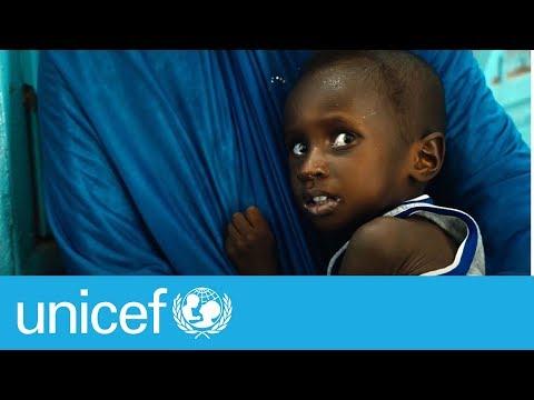 Malnutrition in Mali | UNICEF