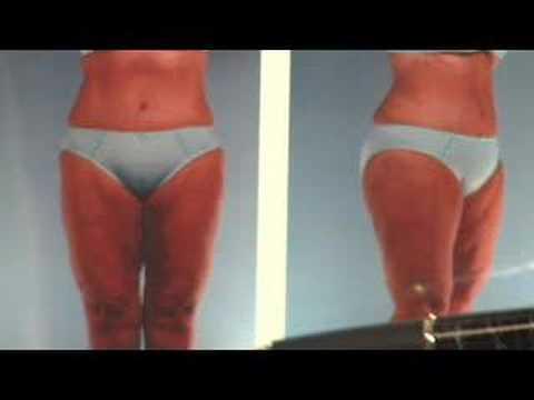 Liposuction and Tummy Tucks