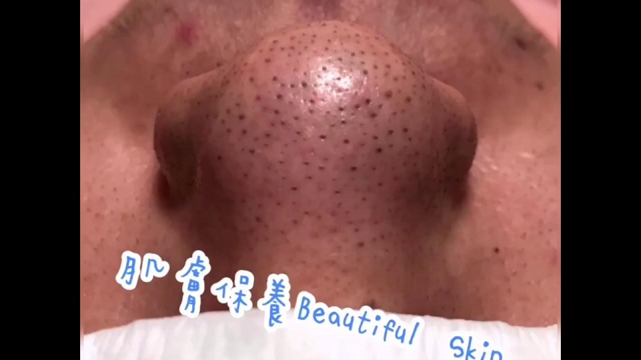 輕鬆清除黑頭粉刺