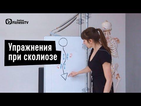 Упражнения при сколиозе. Екатерина Цьовх