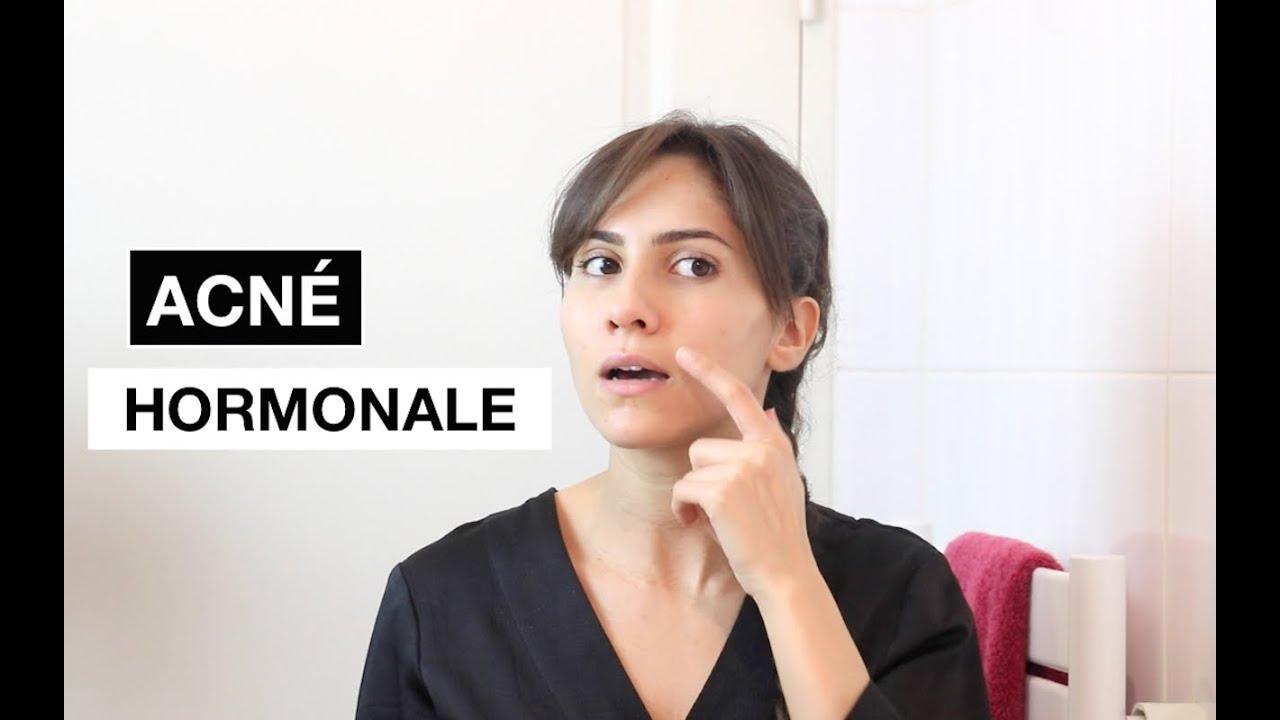 DOSSIER ACNE HORMONALE - Naturellement Lyla l Blog beauté ...