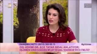 Kanal Tedavisi - Dr. Dt. Ece Tatar SİDAL