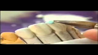 Изготовление керамических виниров на огнеупорной модели(Достаточно простая техника изготовления керамических виниров, при отсутствии печи для прессования. Подроб..., 2015-04-01T10:19:16.000Z)