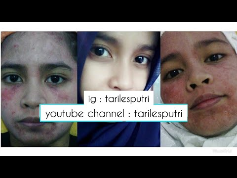 30 MANFAAT SI MUNGIL TENDER CARE   Oriflame from YouTube · Duration:  15 minutes