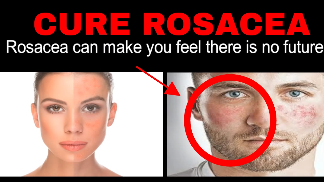 How To Cure Acne Rosacea Overnight Relief From Adult Acne Rosacea