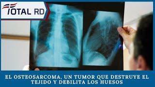 El osteosarcoma, un tumor que destruye el tejido y debilita los huesos