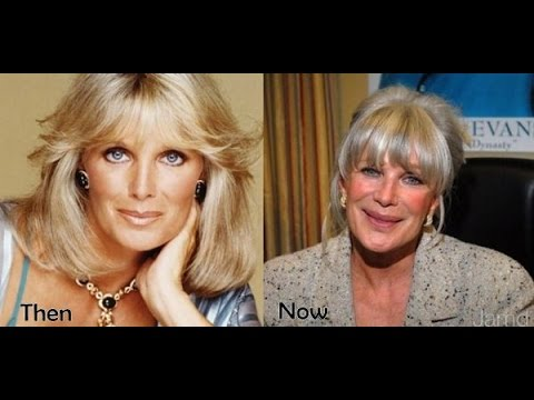 Linda Evans' Enhanced Look  Before and After Photos