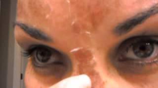 skin peeling tca 14 dia 3