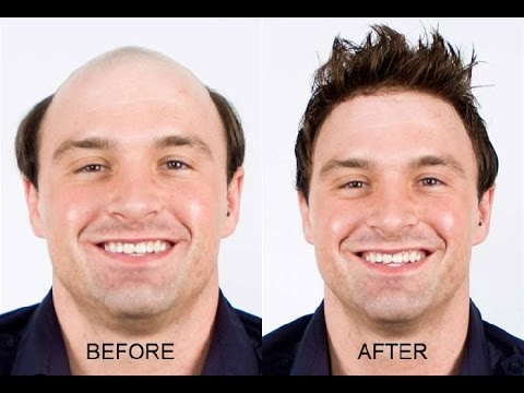 How To Stop Hair Baldness Naturally