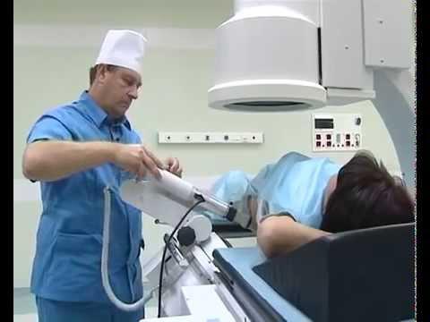 Литотрипсия - дробление камней в почках - YouTube