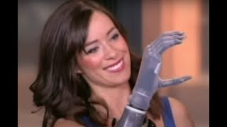 NY Fashion Week Runway Model See Bionic Arm as the Ultimate Tech Accessory
