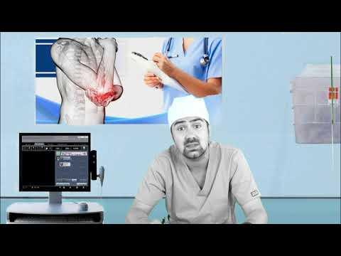 Osteocondrita disecantă. Cauze, simptome, diverse tipuri de tratament - Dr. Gabriel Ștefănescu