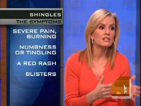 Shingles Virus Explained