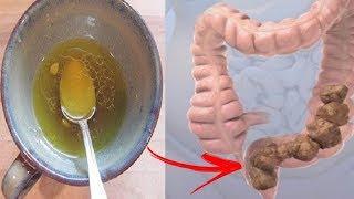 Beseitige Giftstoffe aus deinem Körper und reinige deinen Darm in nur einer Woche!