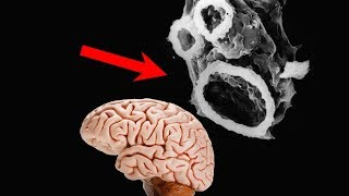 The Deadly Disease That Will Devour Your Brain