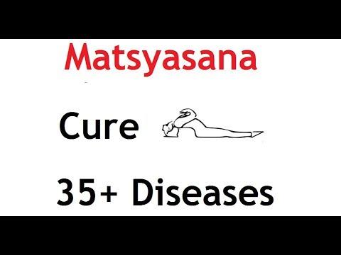 Important Yoga Pose   Matsyasana    Fish Pose   Good For 35+ Diseases