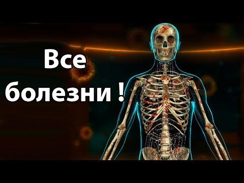 Все болезни в одном человеке ! ( Bio Inc. Redemption )