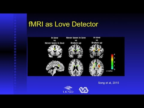Brain Scans: Can They Really Tell Us if You're Lying or in Love?