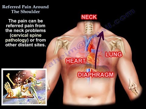 referred pain around the shoulder  everything you need to