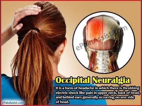 Greater Occipital Nerve Block Youtube