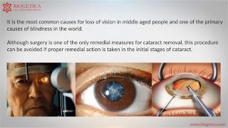 Can Natural Cataract treatments cure Cataract ?