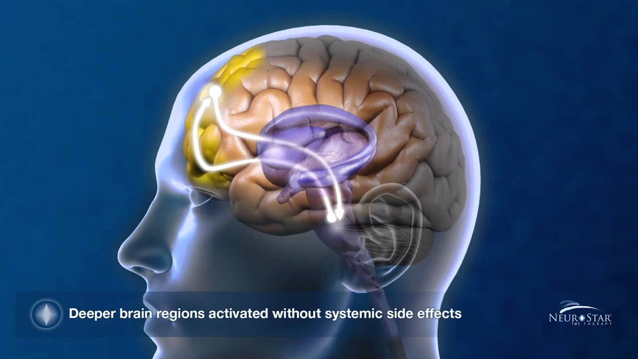 transcranial magnetic stimulation tms Transcranial magnetic stimulation (tms) is emerging as a new treatment and neurophysiological research tool for psychiatric disorders recent publications.