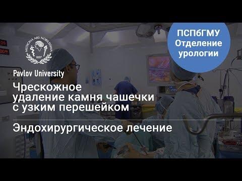 Чрескожное удаление камня чашечки с узким перешейком | Гаджиев Нариман Казиханович, уролог-хирург